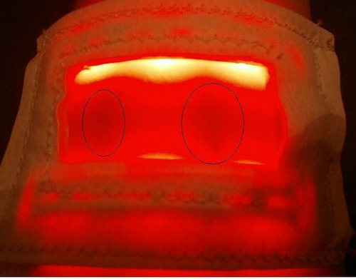 detector de venas, visualizador de venas. iluled